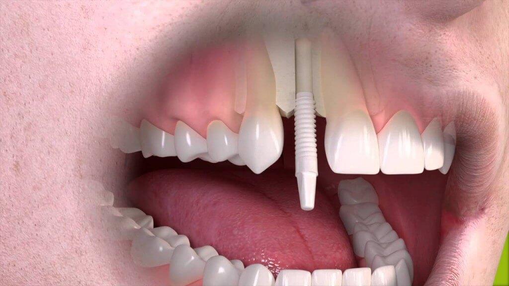 straumann_implant_oslo